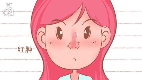 假体隆鼻能维持多久?隆鼻过高有什么严重后果?
