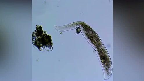 令人兴奋:显微镜下捕捉到一个单细胞微生物进食全过程
