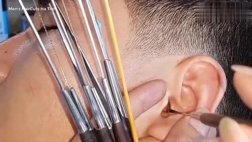 越式采耳长期使用棉签清理耳道的后果,都附着在耳道壁上了