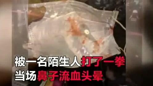 16岁少女街头表演,却被路人打到流鼻血?原因让人心疼!