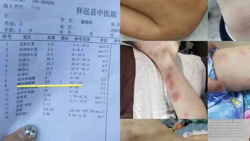 网曝幼儿园幼儿疑甲醛中毒,教体局:正调查,涉事园已停课