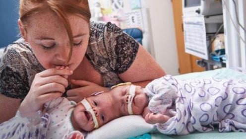 如果连体婴儿其中一人去世,那另一个人会怎样?看完心疼不已!