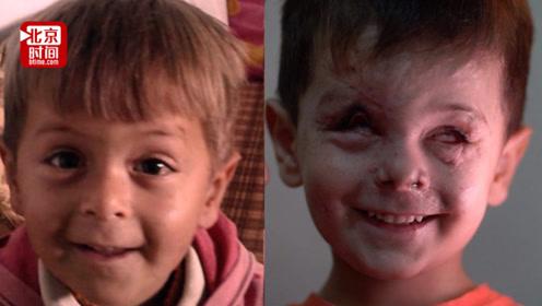 战争的伤疤!叙利亚4岁男童空袭中失去双眼 皮肤还会渗出玻璃碴