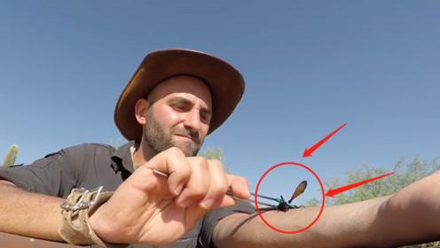 被世界上最糟糕的昆虫叮咬会怎样?老外作死实验,网友:后悔了吧