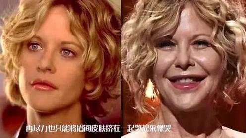 梅格整容大变脸,后遗症凸显太明显!