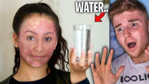 英国女子自称对水过敏,27年没洗过澡,如今她脸部状态令人担忧