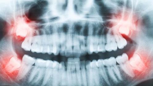 """""""智齿""""到底能不能拔?退休牙科主任道出真相,别让无知害了你!"""