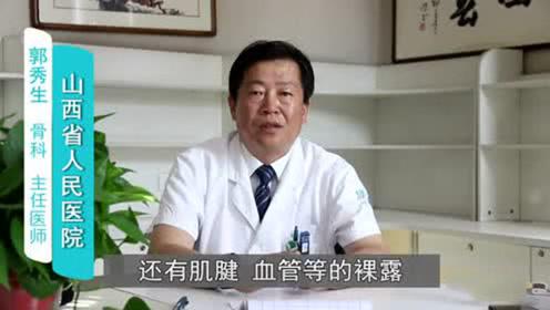 专家告诉皮瓣移植术失败后该如何处理,选用有效在治疗方法很重要