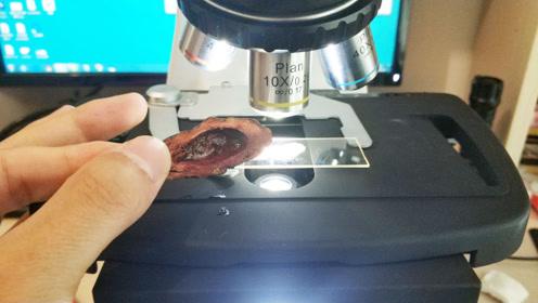 槟榔放在显微镜下,放大500倍后,瞬间不淡定了