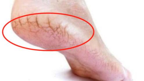 为什么有些人脚后跟会开裂?是身体在暗示什么吗?看完要当心了!
