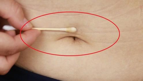 藿香正气水涂在肚脐上太厉害了,很多人想要却不知道,实用