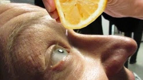 将柠檬汁滴入眼睛里会怎样?小伙亲身体验,下一秒失去控制!