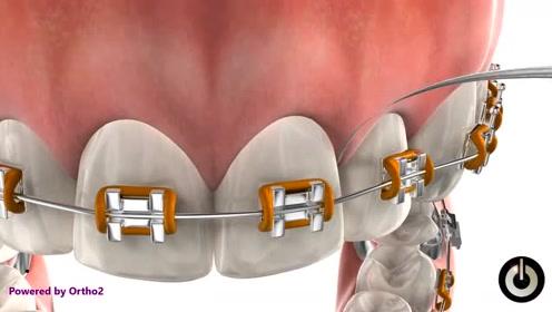 动画模拟带你看看箍牙全过程,矫正过程太神奇了