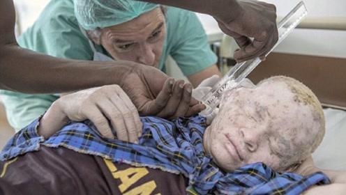 """世界上最""""值钱""""的人,血液比黄金还贵,警察没日没夜的保护"""