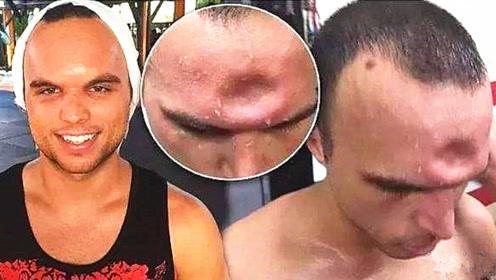 肘击的威力有可怕?这位泰拳手被一肘击碎头骨,脑门都凹进去了