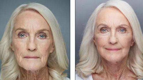 外国80岁老太想要整容,面对医生劝阻怒怼:就是死也要美美的!