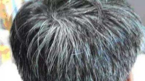 满头白发不要染,坚持4个白发变黑的小妙招,半月白发慢慢变乌发
