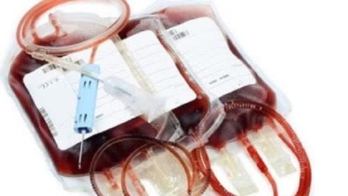 倘若把动物血液注进人体,会出现什么反应?看完令人心惊胆战