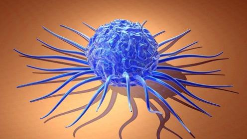 四个症状不断出现,可能是恶性肿瘤信号,占了2点提示进展的快了