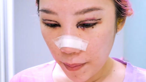 3D动画模拟割双眼皮,看着都觉得疼,看完你还敢割吗?