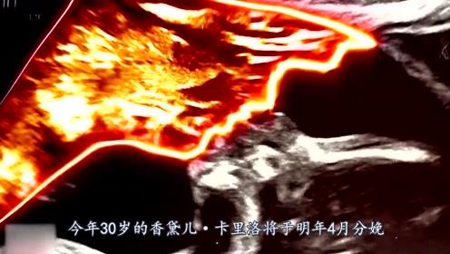 奇闻!美国孕妇拍片后见B超图吃惊:疑似已逝父亲侧颜低头亲吻胎儿!