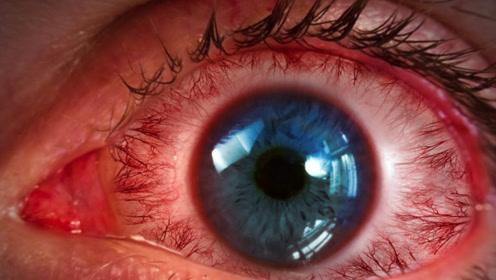 眼睛疲劳酸痛怎么办?医生忠言:按摩这3个穴位有奇效