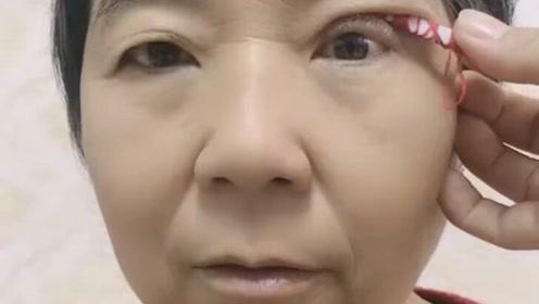 别看妈妈年龄大,非要让我给她整个双眼皮!