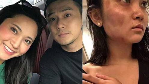 蒋劲夫承认家暴日本女友 韩国女性为具荷拉事件走上街头