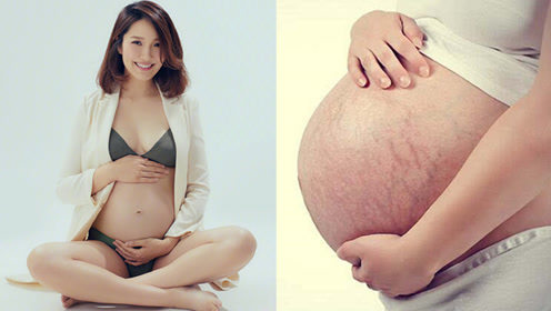 妊娠纹令无数妈妈苦恼 为何很多明星生产后肚子上没有