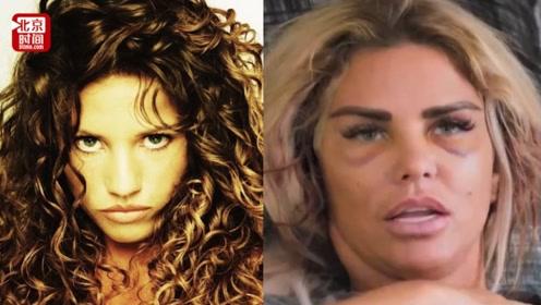 魔怔!英国女模特21年整容成瘾 差点搭上性命却又停不下来
