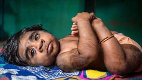 地球上最诡异的婴儿,从出生就自带火种,三个月内自燃四次