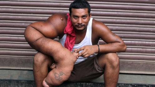 """印度小伙患罕见疾病,被称为""""恶魔之子"""",被家人无情赶出家乡"""