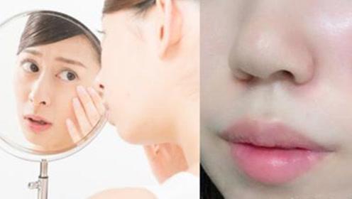 初秋肌肤敏感脱皮又出油 换季保养划重点