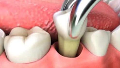 拔牙的过程是怎么样的?3D动画演示整个过程,难怪拔牙那么疼!