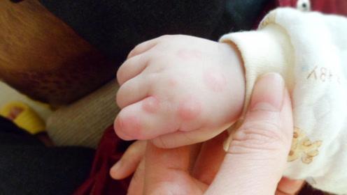 宝宝为啥会反复得手足口病?深度剖析手足口病发病机理
