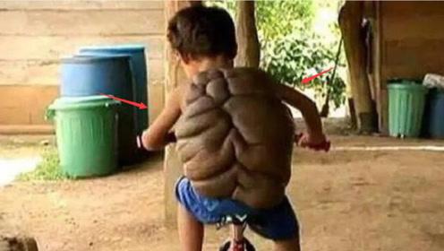 """印度男孩患怪病,背后长着""""乌龟壳"""",网友:现实版""""龟仙人""""?"""