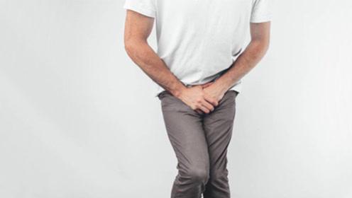夜尿增多?尿无力?帅蜀黍你的前列腺增生了吗?