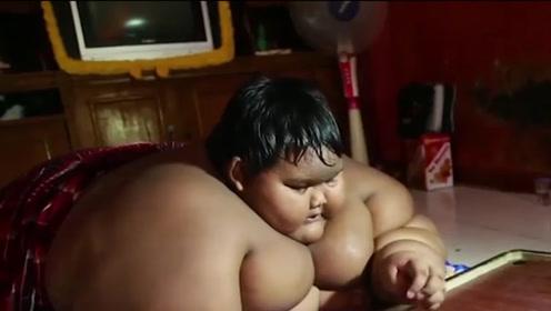 10岁男孩重达400斤,比成年人还要胖,活成了卡通人物