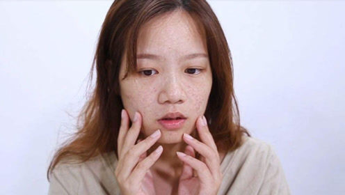 宫颈癌早期无声无息?一旦女人脸上长这东西,癌症离你不远了