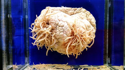 日本人有多变态?建了个充满寄生虫的博物馆,看的头皮发麻!