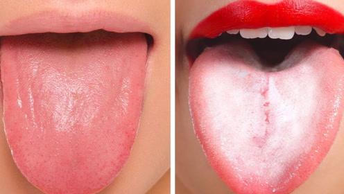 舌头上这层白色物质,到底是个什么玩意儿?看完连忙去医院