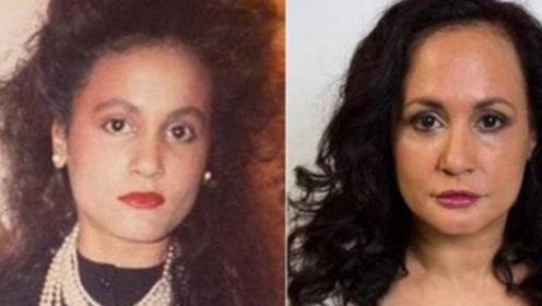 女子为保持脸上零皱纹,近40未曾笑过,如今皮肤依旧紧致!
