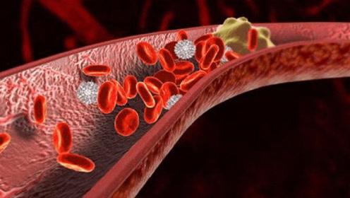 """它被称为""""血管清道夫"""",每天吃一点,血栓不再缠你!"""