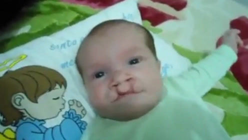 兔唇小宝宝上颌都不完整,连喝奶都无法自己完成,实在太可怜了