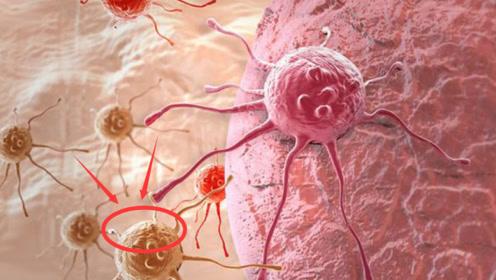 """不要""""养大""""癌细胞!常吃""""这4物"""",是癌细胞的""""抑制剂""""!"""