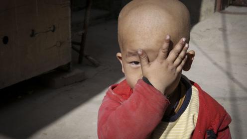 3岁男孩因治疗不及时眼球被摘 对着妈妈哭诉:我的眼睛去哪了?