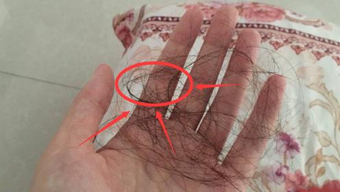 """头发一掉一大把?要养成这""""3个习惯"""",不仅防脱也不""""出油""""了"""