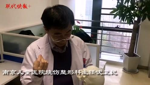 罕见畸形,三岁男童张不了口无法咀嚼