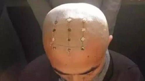 为什么有的和尚头顶有疤有的却没有?说出来你都不敢信
