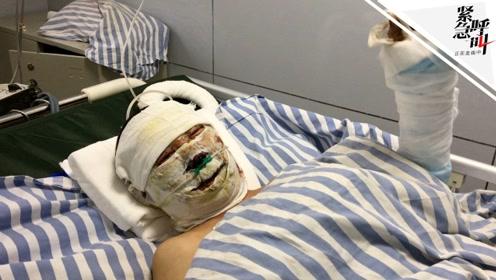 紧急呼叫丨平遥受伤矿工为救工友面部烧伤:他脚被绞住 花1分多钟解开